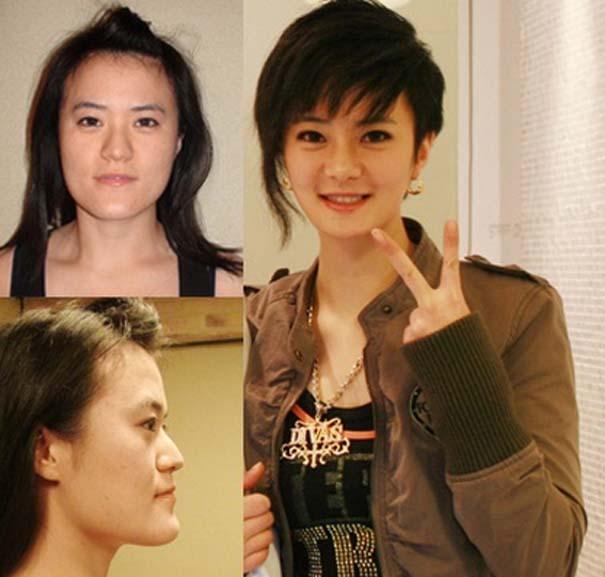 Απίστευτες φωτογραφίες Κορεατών πριν και μετά την πλαστική (23)