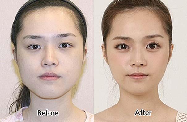 Απίστευτες φωτογραφίες Κορεατών πριν και μετά την πλαστική (31)