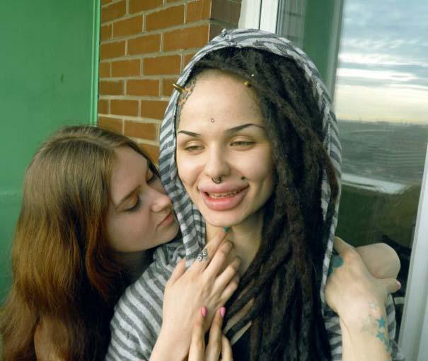 Η γυναίκα με τα μεγαλύτερα χείλη στον κόσμο (11)