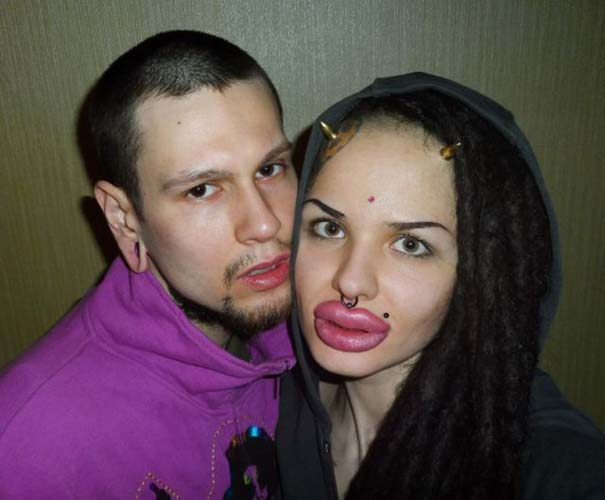 Η γυναίκα με τα μεγαλύτερα χείλη στον κόσμο (16)