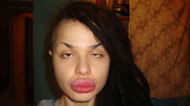 Η γυναίκα με τα μεγαλύτερα χείλη στον κόσμο (21)