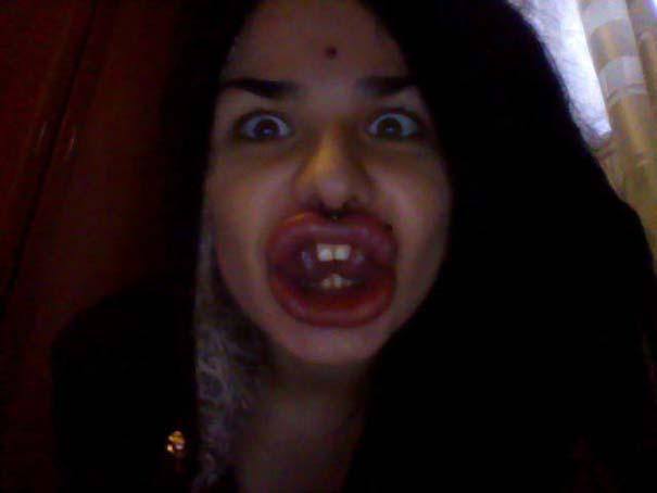 Η γυναίκα με τα μεγαλύτερα χείλη στον κόσμο (22)