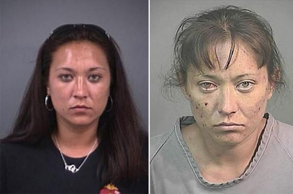 Shocking photographs of people before and after drug use ...