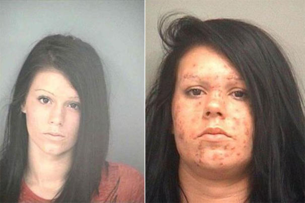 People before and after drug use (16)