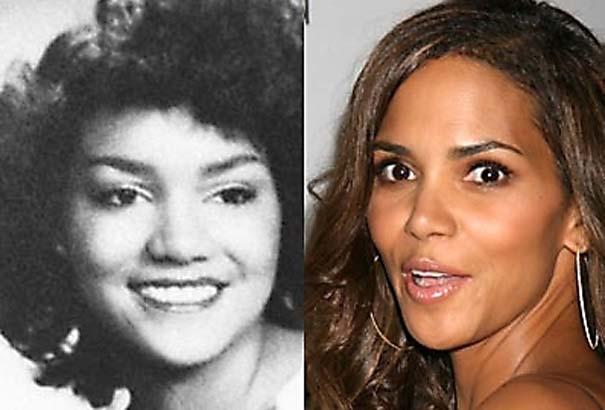 Celebrities πριν και μετά την πλαστική (2)