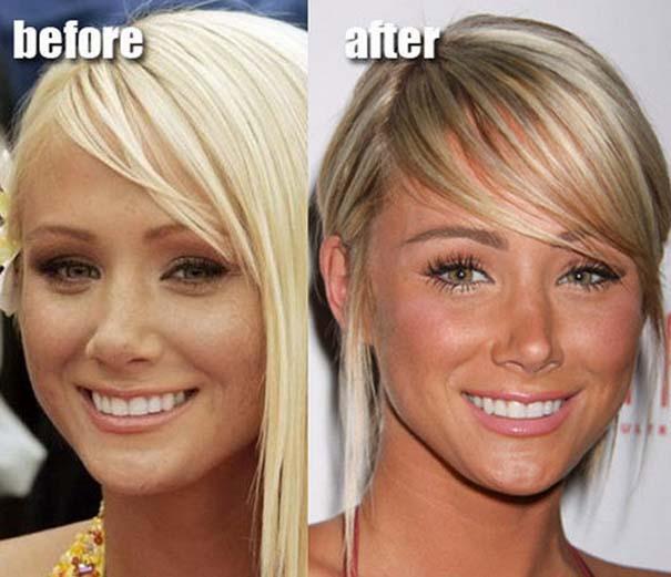 Celebrities πριν και μετά την πλαστική (6)