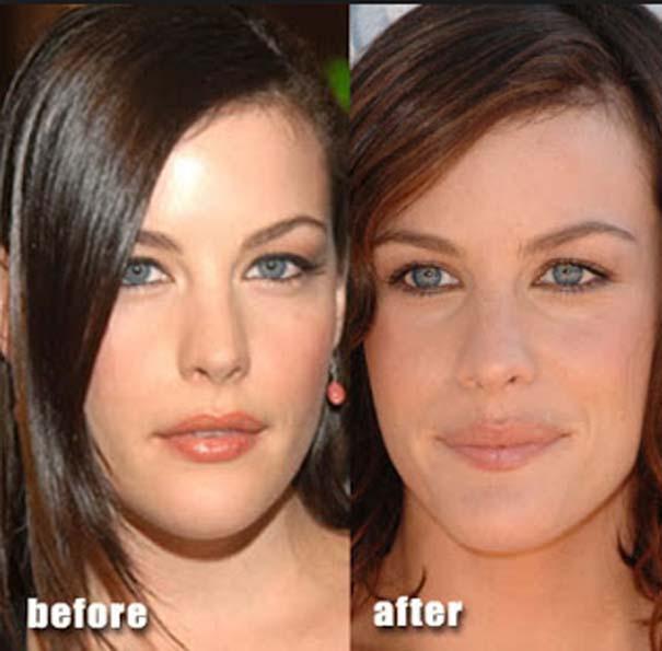 Celebrities πριν και μετά την πλαστική (7)