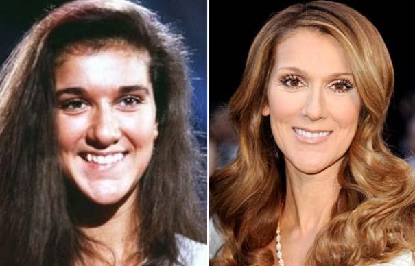 Celebrities πριν και μετά την πλαστική (8)
