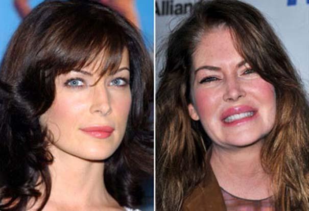 Celebrities πριν και μετά την πλαστική (9)