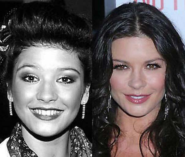 Celebrities πριν και μετά την πλαστική (10)