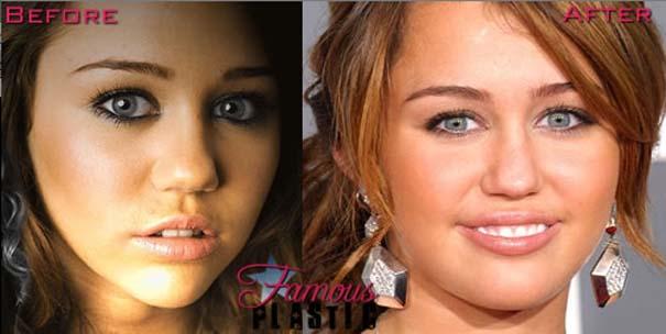 Celebrities πριν και μετά την πλαστική (11)