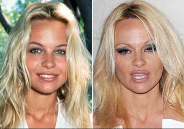Celebrities πριν και μετά την πλαστική (12)