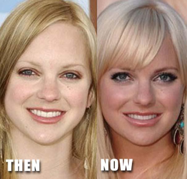 Celebrities πριν και μετά την πλαστική (13)