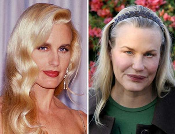 Celebrities πριν και μετά την πλαστική (14)
