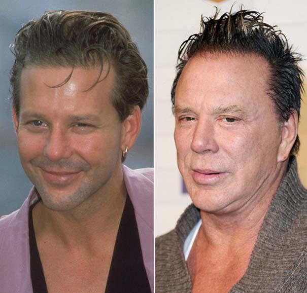 Celebrities πριν και μετά την πλαστική (15)