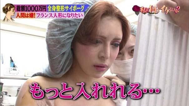 Γιαπωνέζα έκανε πλαστικές για να μεταμορφωθεί σε ζωντανή κούκλα (3)