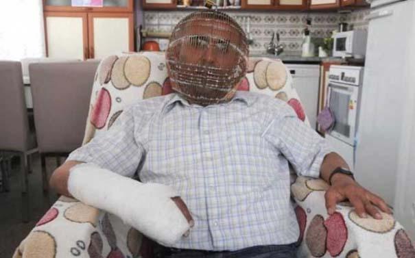 Τούρκος φοράει κλουβί στο κεφάλι του για να κόψει το κάπνισμα! (1)