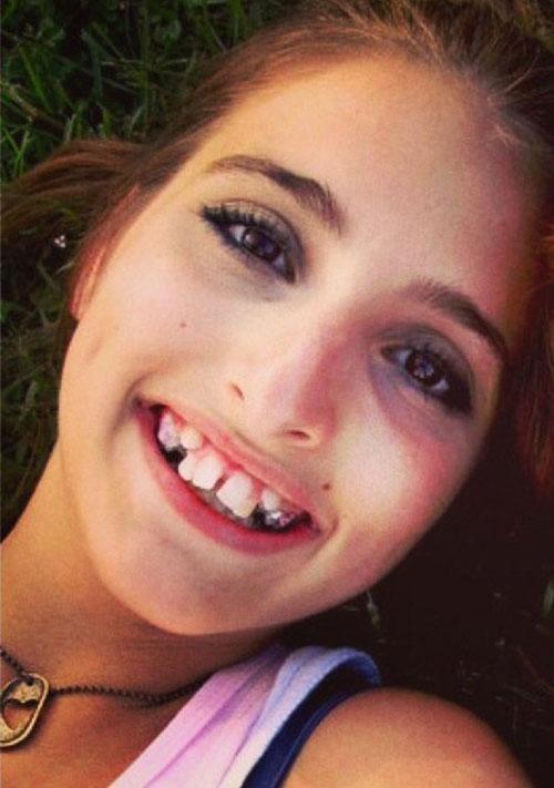 Αυτή η κοπέλα απέκτησε το χαμόγελο που ονειρευόταν (1)