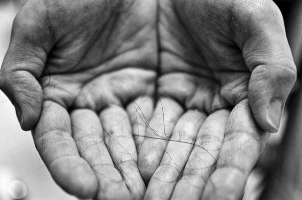 Φωτογράφος καταγράφει τη μάχη της γυναίκας του με τον καρκίνο του μαστού (4)