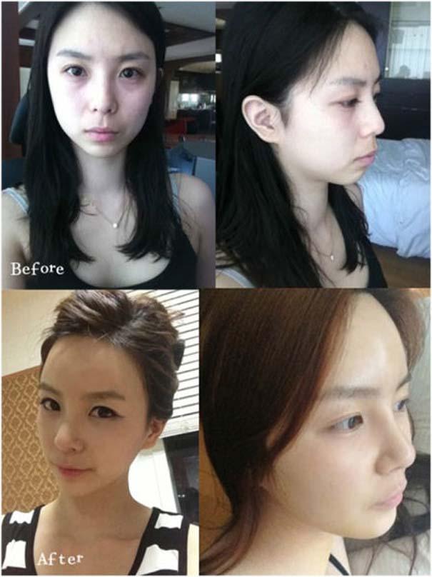 Απίστευτες φωτογραφίες Κορεατών πριν και μετά την πλαστική (11)