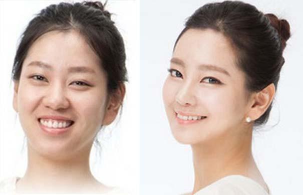 Απίστευτες φωτογραφίες Κορεατών πριν και μετά την πλαστική (17)