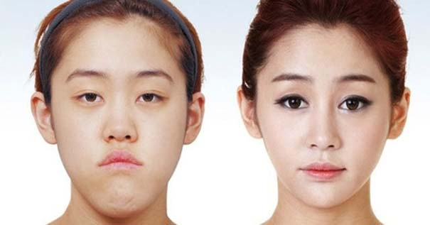 Απίστευτες φωτογραφίες Κορεατών πριν και μετά την πλαστική (20)