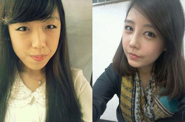 Απίστευτες φωτογραφίες Κορεατών πριν και μετά την πλαστική (24)