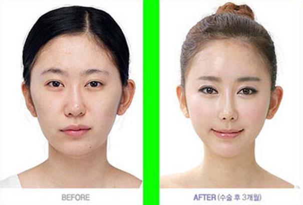 Απίστευτες φωτογραφίες Κορεατών πριν και μετά την πλαστική (25)