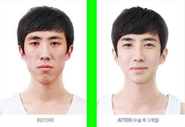 Απίστευτες φωτογραφίες Κορεατών πριν και μετά την πλαστική (26)
