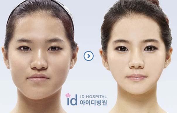 Απίστευτες φωτογραφίες Κορεατών πριν και μετά την πλαστική (27)
