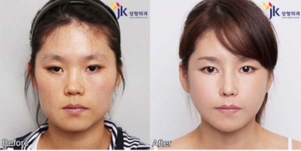 Απίστευτες φωτογραφίες Κορεατών πριν και μετά την πλαστική (28)