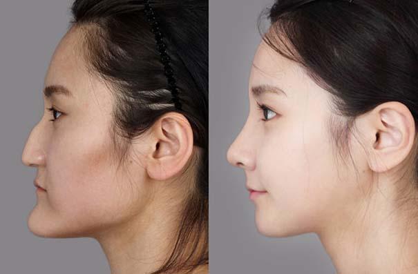 Απίστευτες φωτογραφίες Κορεατών πριν και μετά την πλαστική (30)