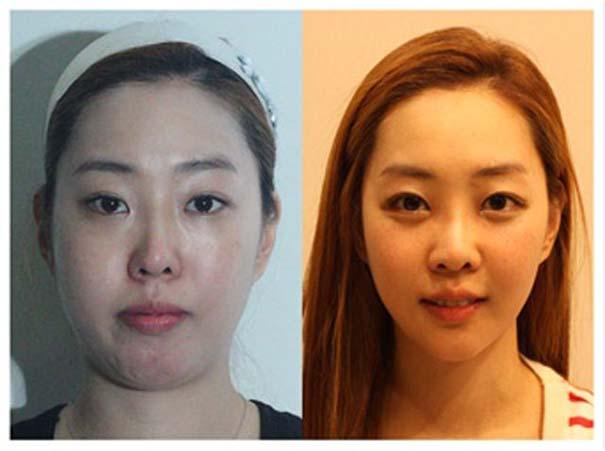 Απίστευτες φωτογραφίες Κορεατών πριν και μετά την πλαστική (32)