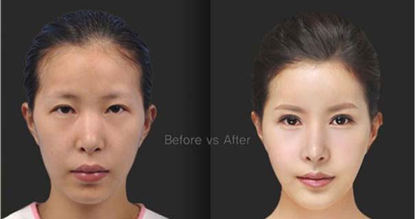Απίστευτες φωτογραφίες Κορεατών πριν και μετά την πλαστική (33)