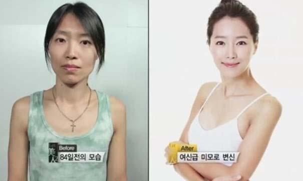 Απίστευτες φωτογραφίες Κορεατών πριν και μετά την πλαστική (34)