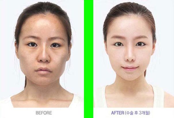Απίστευτες φωτογραφίες Κορεατών πριν και μετά την πλαστική (35)
