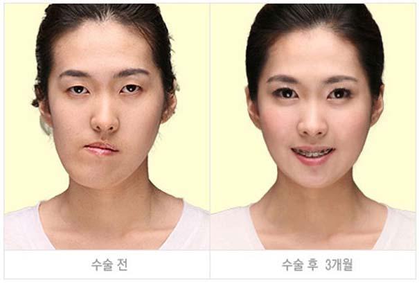 Απίστευτες φωτογραφίες Κορεατών πριν και μετά την πλαστική (36)
