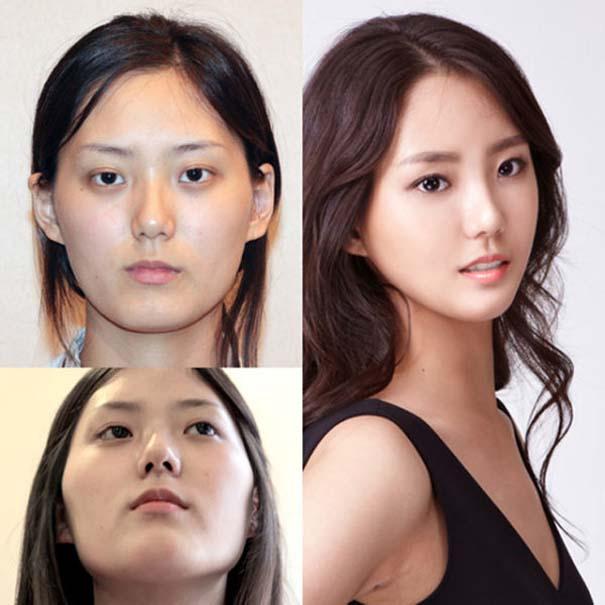 Απίστευτες φωτογραφίες Κορεατών πριν και μετά την πλαστική (37)