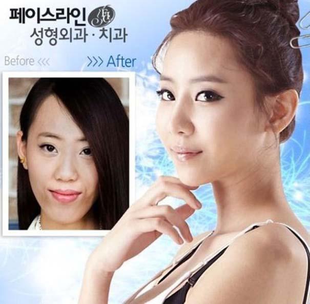 Απίστευτες φωτογραφίες Κορεατών πριν και μετά την πλαστική (38)