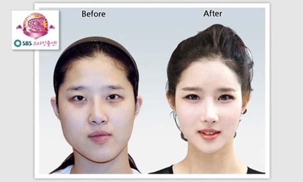 Απίστευτες φωτογραφίες Κορεατών πριν και μετά την πλαστική (39)