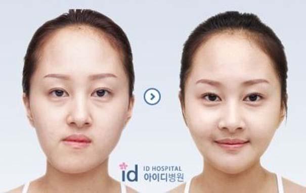 Απίστευτες φωτογραφίες Κορεατών πριν και μετά την πλαστική (40)