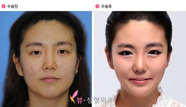 Απίστευτες φωτογραφίες Κορεατών πριν και μετά την πλαστική (41)