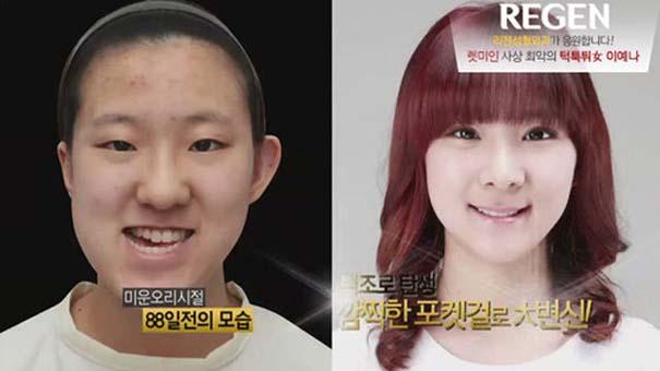 Απίστευτες φωτογραφίες Κορεατών πριν και μετά την πλαστική (42)