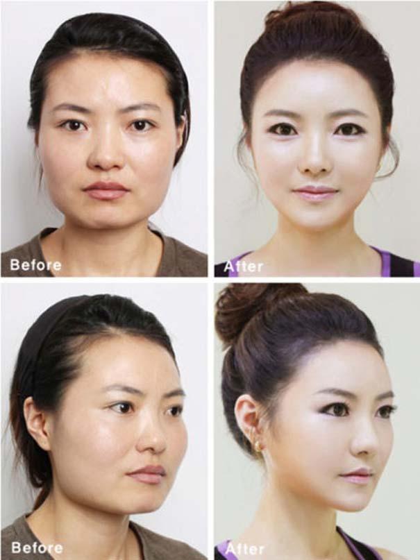 Απίστευτες φωτογραφίες Κορεατών πριν και μετά την πλαστική (43)