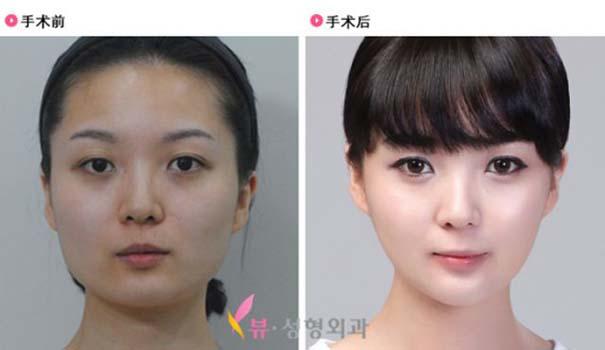 Απίστευτες φωτογραφίες Κορεατών πριν και μετά την πλαστική (45)