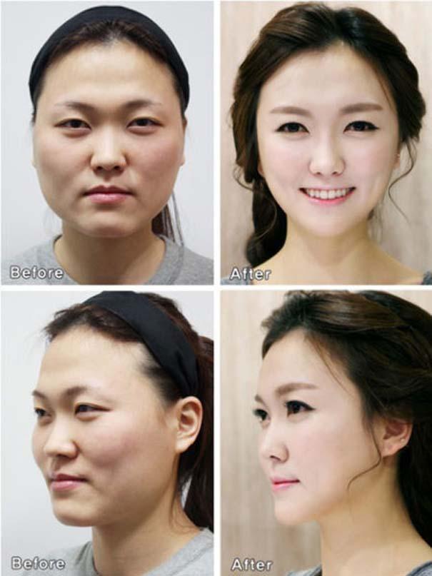 Απίστευτες φωτογραφίες Κορεατών πριν και μετά την πλαστική (46)