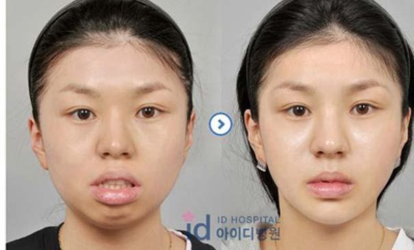 Απίστευτες φωτογραφίες Κορεατών πριν και μετά την πλαστική (47)