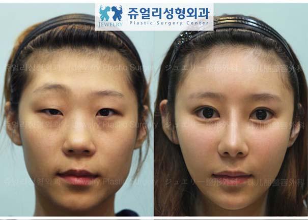 Απίστευτες φωτογραφίες Κορεατών πριν και μετά την πλαστική (1)