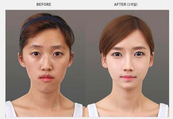 Απίστευτες φωτογραφίες Κορεατών πριν και μετά την πλαστική (4)