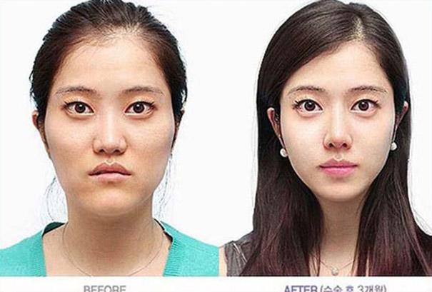 Απίστευτες φωτογραφίες Κορεατών πριν και μετά την πλαστική (5)